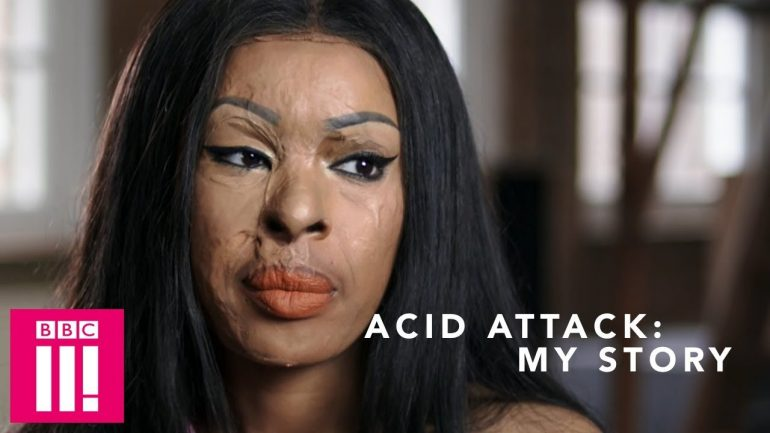 Acid Attack: My Story