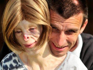 Being Terri: Britain's Youngest Burns Survivor