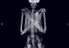 Bone Diggers