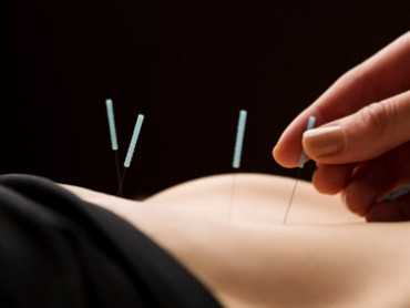 The Science of Acupuncture