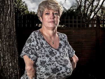 Thalidomide The Fifty Year Fight