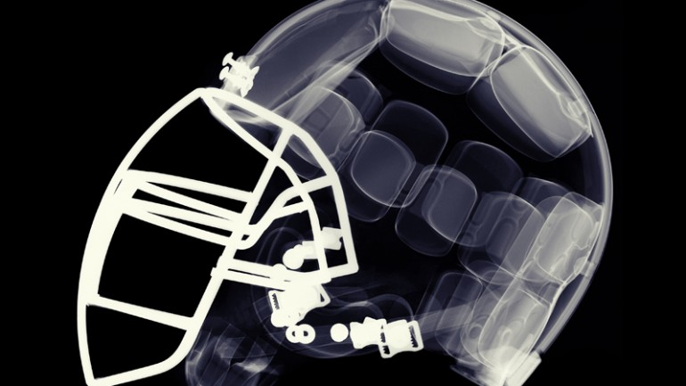 League of Denial: The NFL's Concussion Crisis